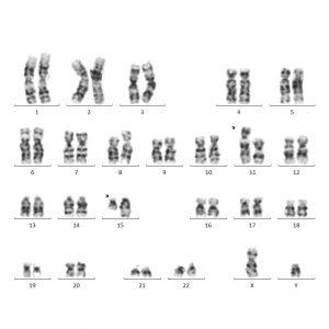 Носительство сбалансированной транслокации между хромосомами 11 и 15. Пациент клинически здоров, но в семье невынашивание беременности.
